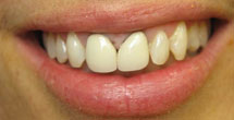 Dark coloring around teeth at gums