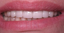 Brilliantly white smile after treatment