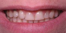 Dark colroed teeth with yellowing