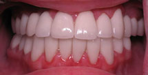 Healthy brilliantly white teeth