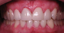 Front tooth repaired to natural healthy appearance