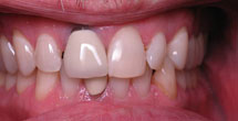 Black coloring around front tooth