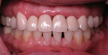 White healthy teeth and gums