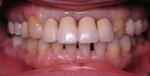 Decayed and discolored teeth