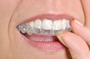 Invisalign clear braces Cumming Ga
