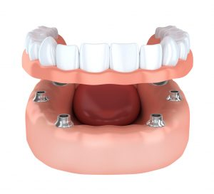 Your dentist in Cumming combines dental implants and dentures to restore lost teeth.